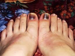 best 20 black toenail fungus ideas on pinterest toenail fungus