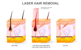 hair removal canadian dermatology association
