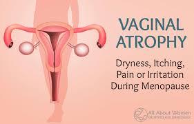 woman s virgina vaginal atrophy vaginal dryness itching pain or irritation during