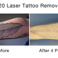 disappearing ink laser tattoo removal tattoo removal 110 e