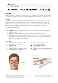 systemic lupus erythematosus sle valley osteopathy