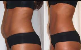 lipo light laser treatment reviews lipo laser weight loss treatment price from dealdey in nigeria yaoota