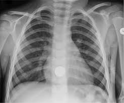 256 shades of gray uncertainty and diagnostic error in radiology