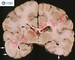 neuropathology blog april 2011