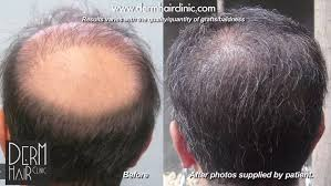 how thick is 1000 hair graft body hair to head transplant with ugraft fue technology dr umar
