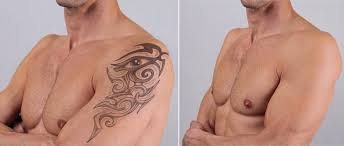 tattoo removal shoulder laser tattoo removal proves best solution for military personnel