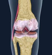 3d Knee Anatomy Osteoporosis Of The Knee Joint 3d Model Cgstudio