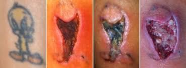 ipl tattoo removal disaster u2013 deink tattoo removal