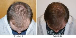 low level light therapy hair treating hair loss with laser technology tennessee health and