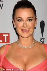 kyle richards hair extensions i couldn t see and everything was blurry real housewives of