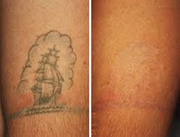 removing amateur tattoos houston laser tattoo removal http