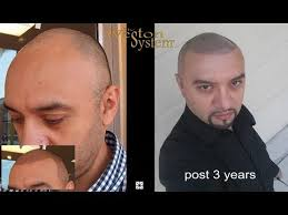 pics of scalp micropigmentation on people with long hair m weston scalp micropigmentation long term results youtube