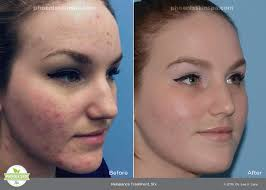 blue and red light therapy for acne blue red light therapy phoenix skin spa