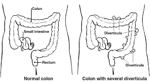 diverticulitis and diverticula info on diverticulitis patient