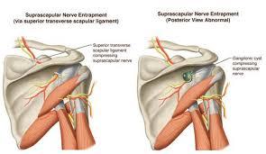 Human Shoulder Diagram Shoulder Nerve Compression Syndromes Reconstructive Orthopedics