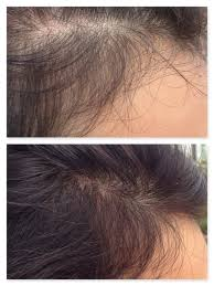womans hair thinning on sides stop hair loss thinning with hair enhancement llt hebe