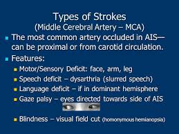 Can Stroke Cause Blindness Stroke Management For The Ems Provider Ppt Video Online Download