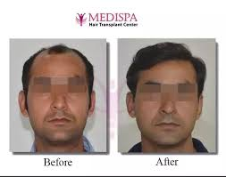 best hairtransplant in the world which is the best clinic for hair transplant in the world quora
