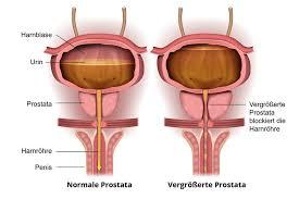 blasenschwäche männer inkontinenz nach prostata op ratgeber inkontinenz prostata