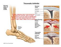 Talus Ligaments Amicus Illustration Of Amicus Injury Foot Traumatic Arthritis