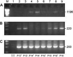 Doc 575709 Simple Vendor Agreement Altered Mrna Expression Of Pax5 And Blimp 1 In B Cells In Multiple