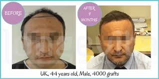 hair uk hair transplant turkey the no 1 choice for hair transplants in turkey