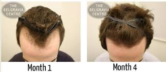 female receding receding hairline in women causes treatments regrowth