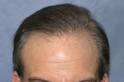 hair transplant month by month pictures hair transplant photos results timeline bernstein medical