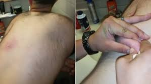does prids work on ingrown hairs disgusting moment a man squeezes a huge ingrown hair on his