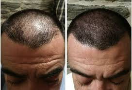 pics of scalp micropigmentation on people with long hair are there any good centres for scalp micro pigmentation in south