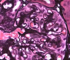 glomerular and vascular diseases membranous nephropathy renal