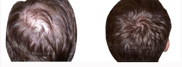 images of hair trichologist hair loss trichology hair loss dc md va ny in ca