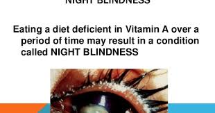 Night Blindness Caused By Vitamin A Deficiency Physio Knowledge Night Blindness