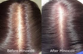 can rogaine minoxidil make hair loss worse limmer htc