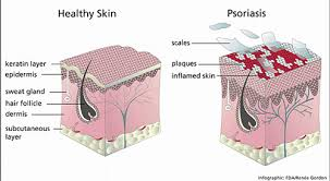 psoriasis treatment psoriasis treatment askanesthetician s blog