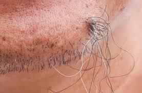 do ingrown hair hurt how long do ingrown hairs lastelux medical elux medical