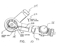 patent us20060271060 threaded knotless suture anchoring device