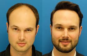 hair plugs for men how expensive is hair transplant surgery for men quora