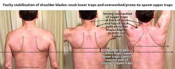 overcoming chronic neck postural causes and a unique exercise