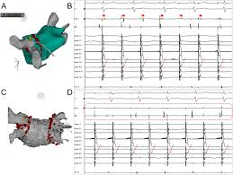 pulmonary vein isolation in cases of difficult catheter placement