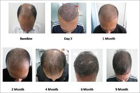 hair transplant month by month pictures view image
