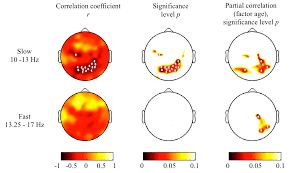 brain sciences free full text topography of slow sigma power