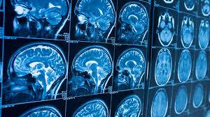 what is the difference between parkinson u0027s disease and