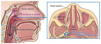 Behind The Ear Anatomy Nasopharyngeal Cancer Head And Neck Cancer Info For Teens