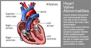 Anatomy Of Heart Valve Heart Birth Defects Heart Valve Abnormalities