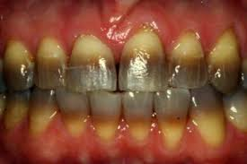 Dentist That Do Teeth Whitening Kör Teeth Whitening Zahra Cook Dmd Magd Lvif Ficoi