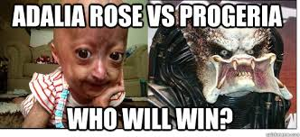 Adalia Rose Memes - adalia rose vs progeria who will win adalia rose vs progeria