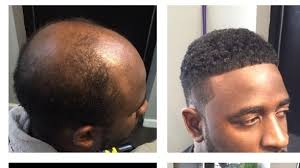 hair transplant for black women man weaves a game changer for balding men cash for 2 5