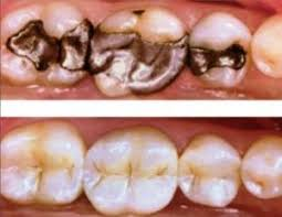 light cure composite filling white fillings composite resin geelong
