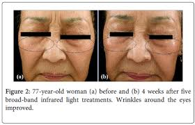 Light Therapy For Skin Clinical Effectiveness Of Broad Band Infrared Light Therapy For